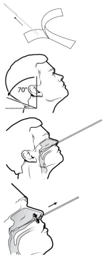 Biosynex nasofaryngeale swab