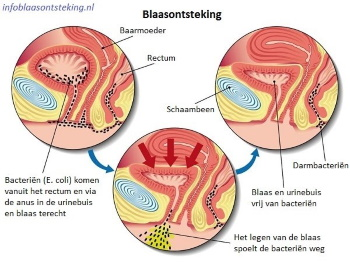 Blaasontsteking e. coli illustratie