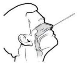 Lungene neusswab deel 1